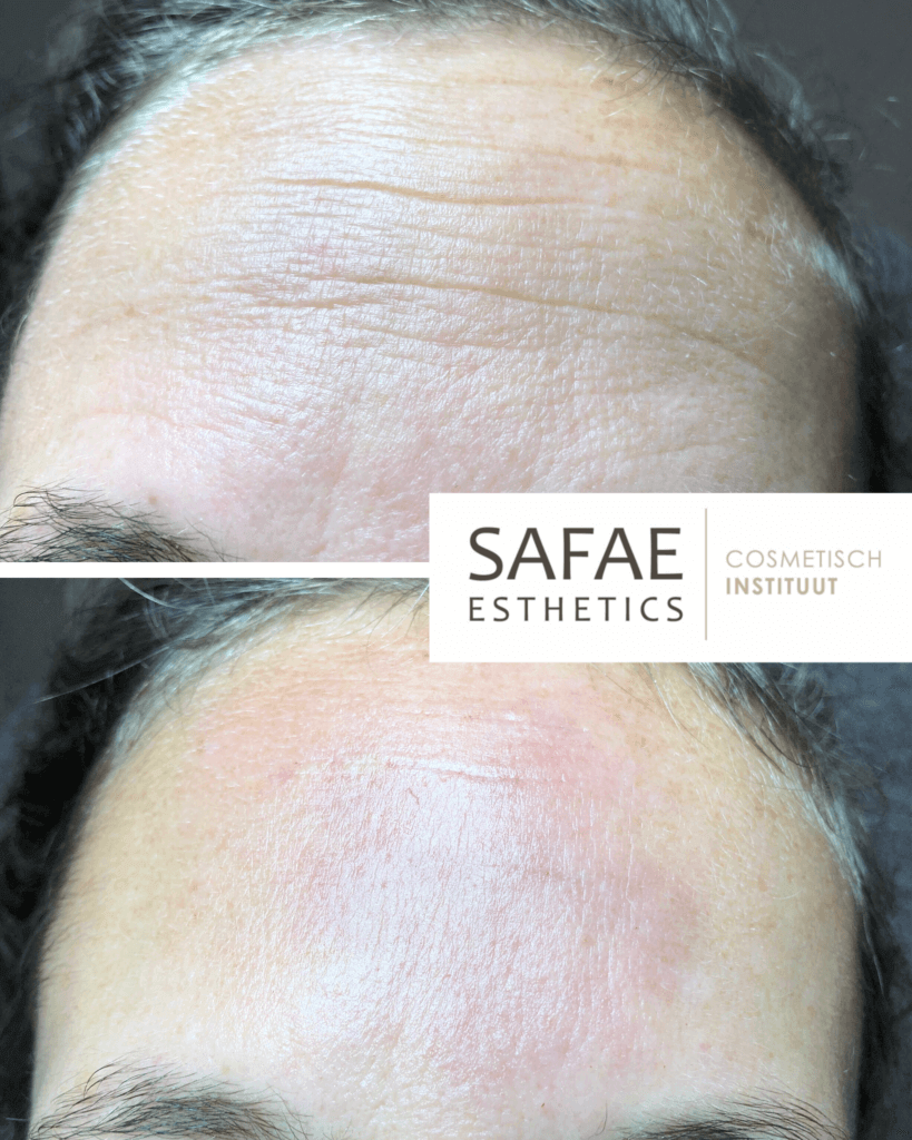 meso-therapy-before-and-after-safae-esthetics--819x1024