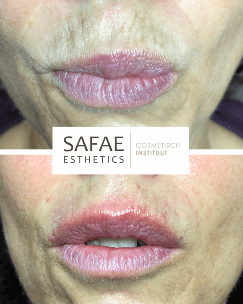 meso-therapy-lips-before-and-after-safae-esthetics